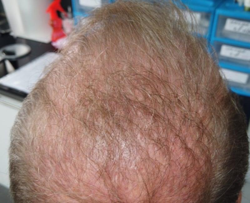 Greffe-cheveux-poils - MIXED GRAFTING POILS ET CHEVEUX
