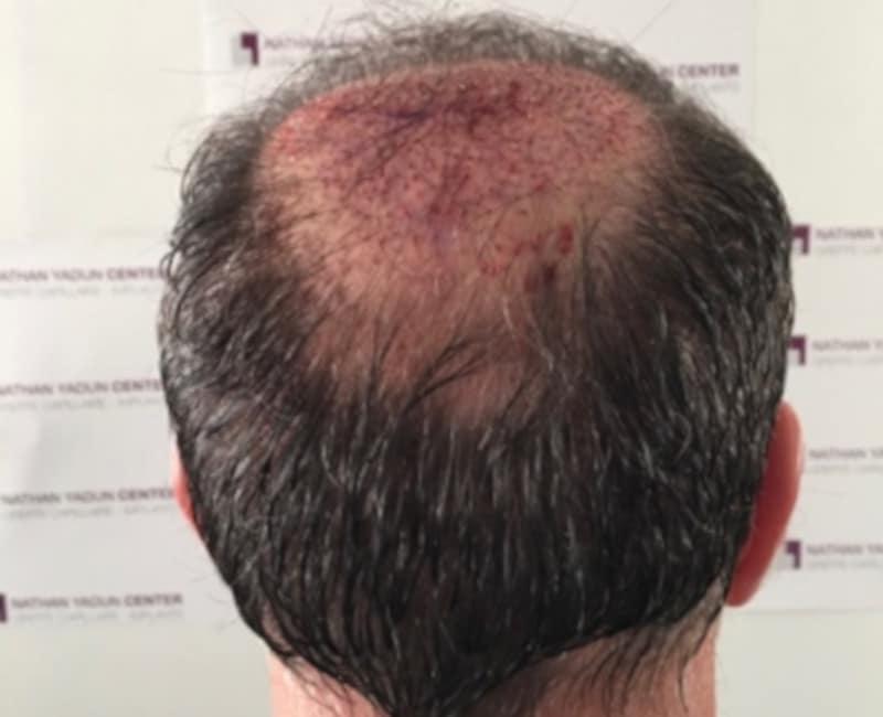Greffe-cheveux-poils - GREFFE DE CHEVEUX SANS RASAGE
