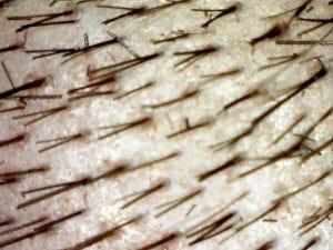 Greffe de poils cuir chevelu
