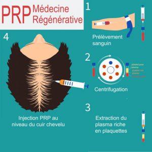 PRP Médecine régénérative