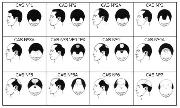 Les 7 étapes de la perte de cheveux