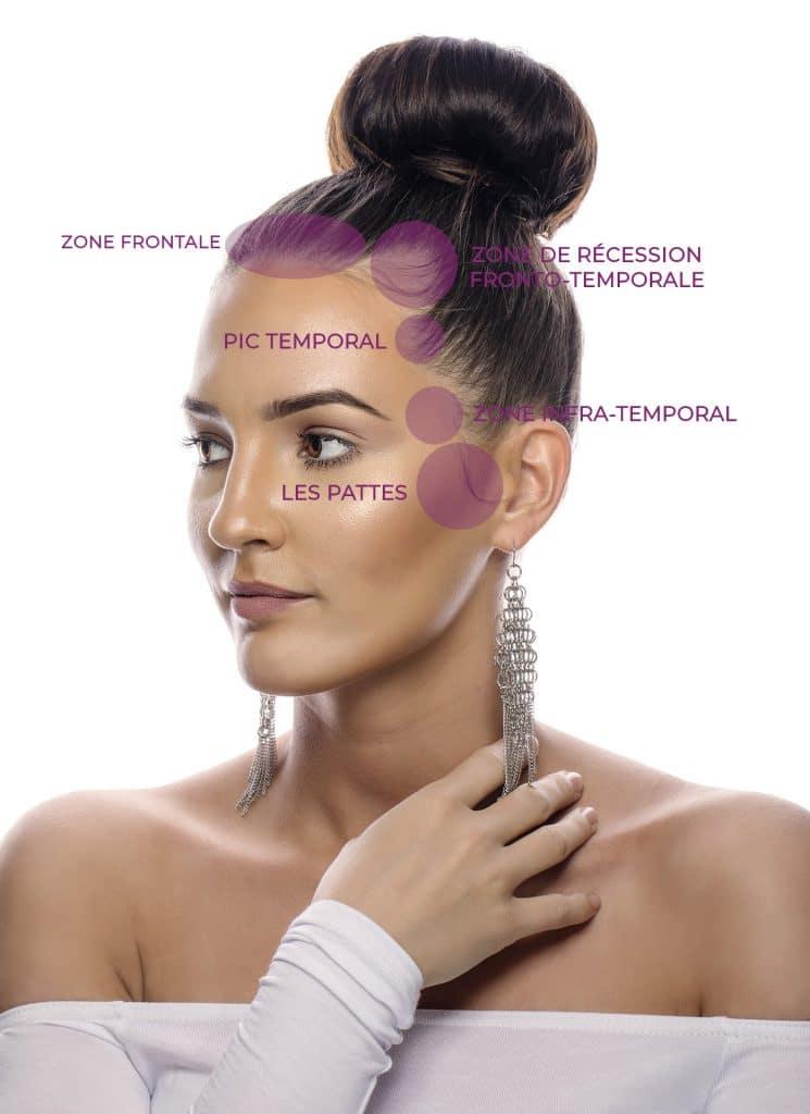 régions importantes de la ligne frontale chez la femme