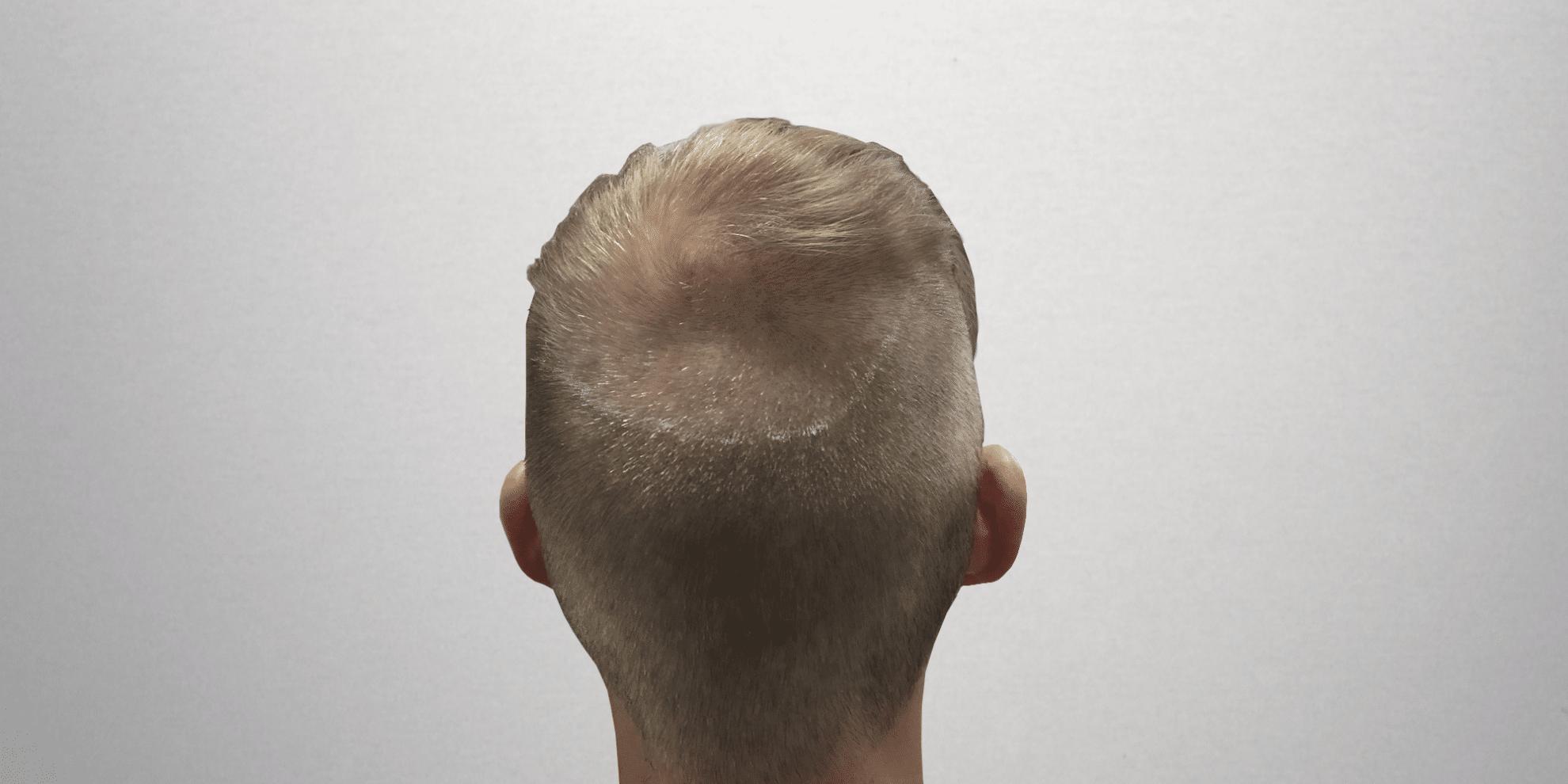 FUE avec rasage