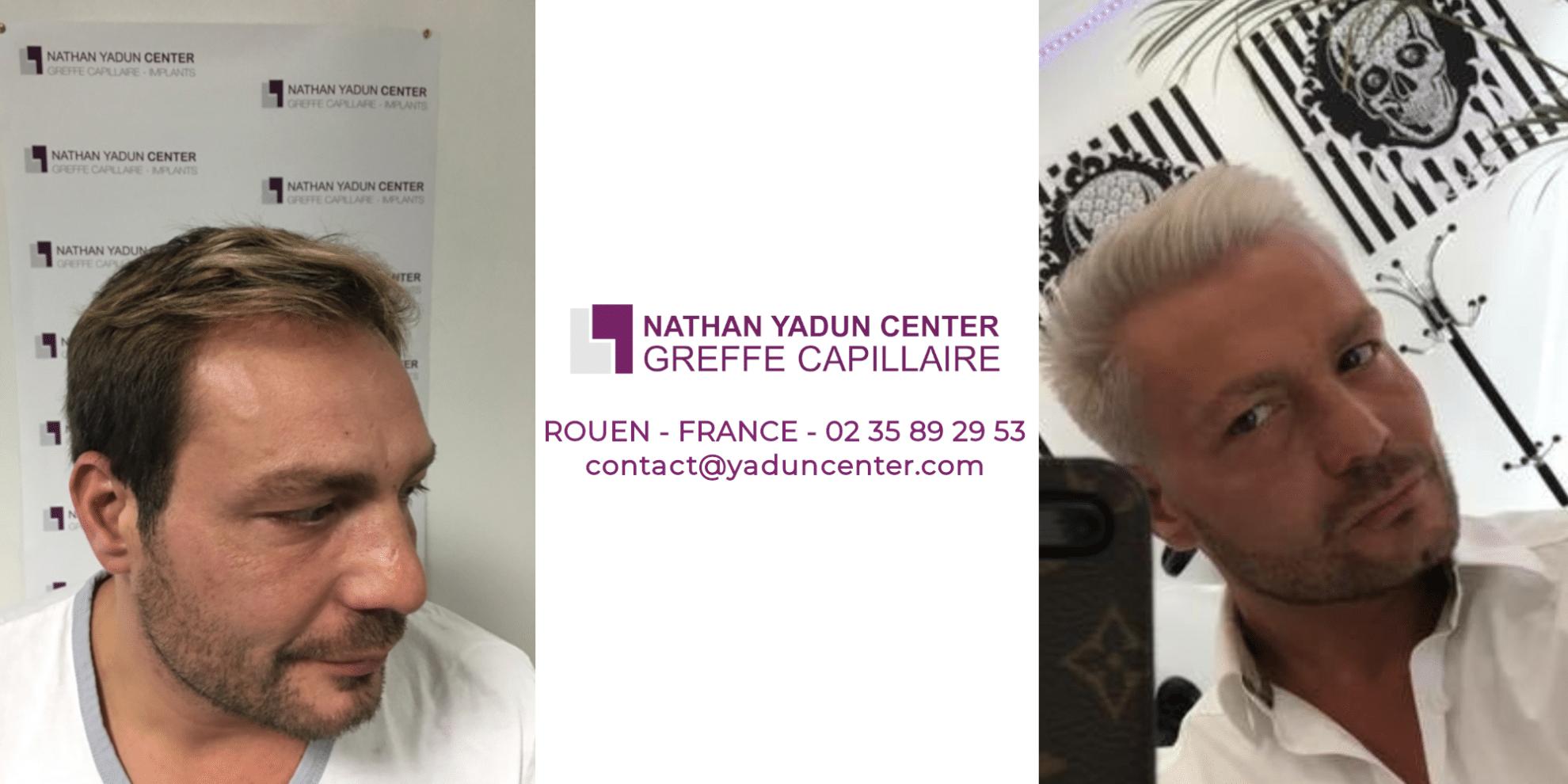 Gallerie vidéo Nathan Yadun Center