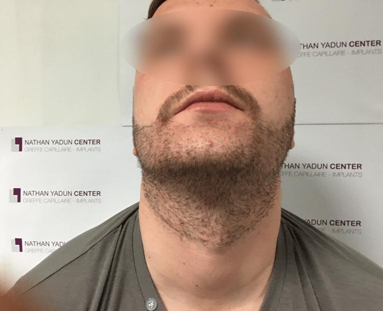 Greffe-cheveux-poils - Prestation Greffe barbe