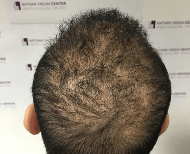 Greffe-cheveux-poils - Prestation Greffe cuir chevelu