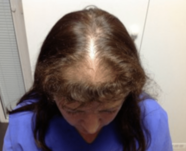 Greffe-cheveux-poils - Prestation Greffe cheveux femme
