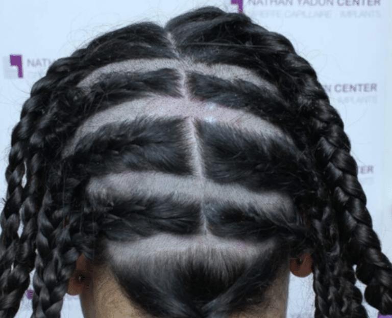 Greffe-cheveux-poils - Prestation FUE Patchy