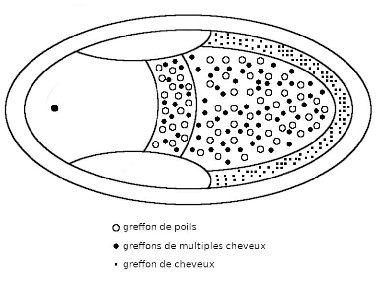 Schéma greffons