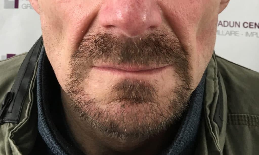 Greffe barbe moustache évolution