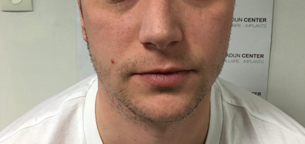 Greffe de barbe après