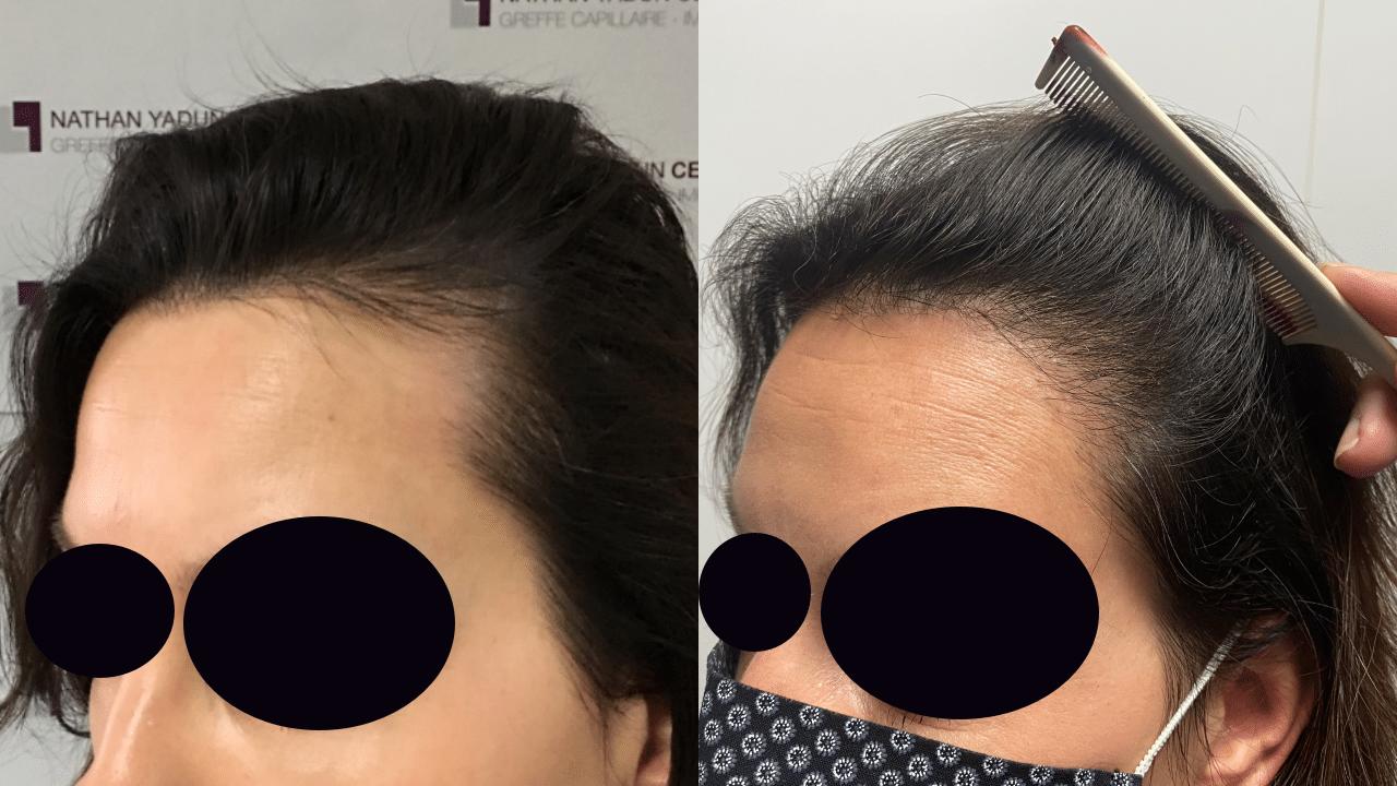 Greffe cheveux femme avant après