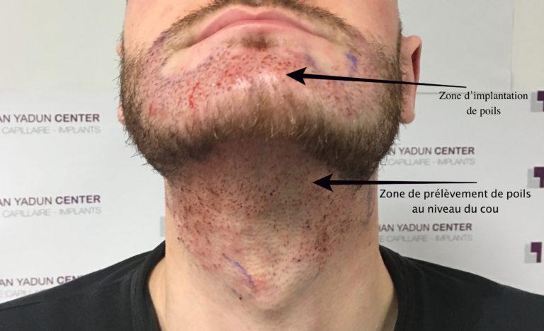 Greffe poils sur barbe et visage