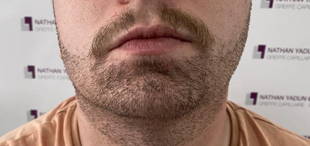 Implantation de barbe