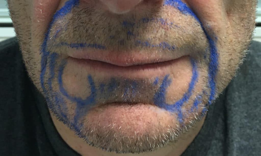 Greffe barbe visage